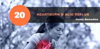 heartburn remedies & acid reflux