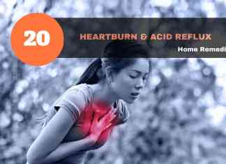 heartburn remedies & acid reflux