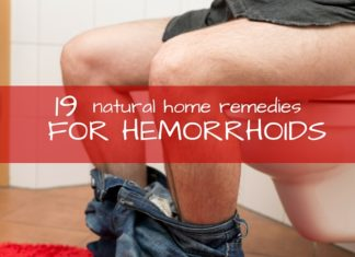 hemorrhoids remedies