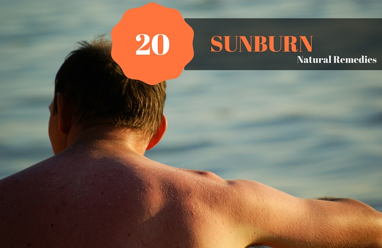 20 Sunburn Home Remedies- Unusually Easy To Apply On The Skin