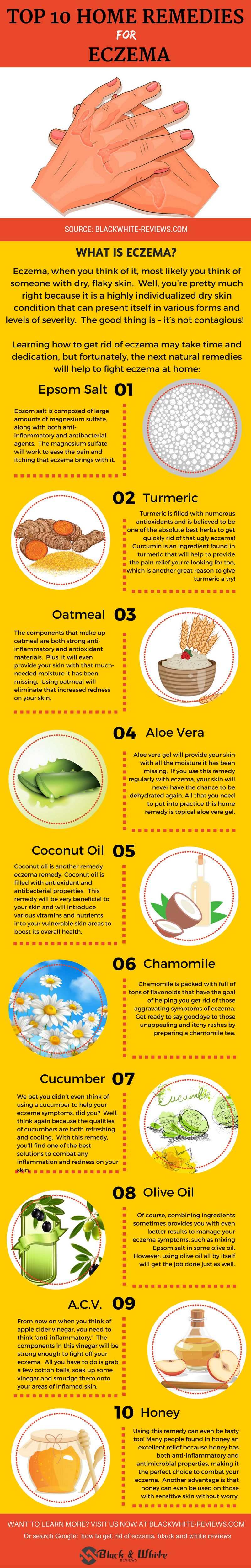 top 10 home remedies for eczema - infographic