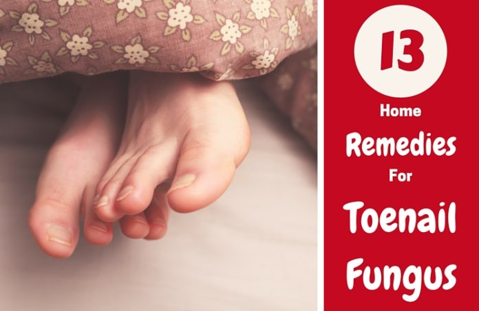 13 home remedies for toenail fungus