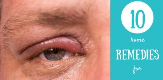 pink eye remedies