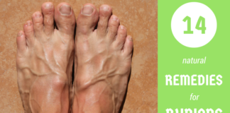 14 home remedies for bunions