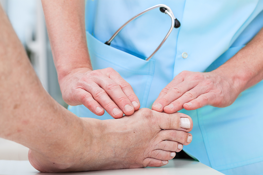 Orthopedist treating bunions