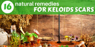 how to get rid of keloids scars- 16 remedies