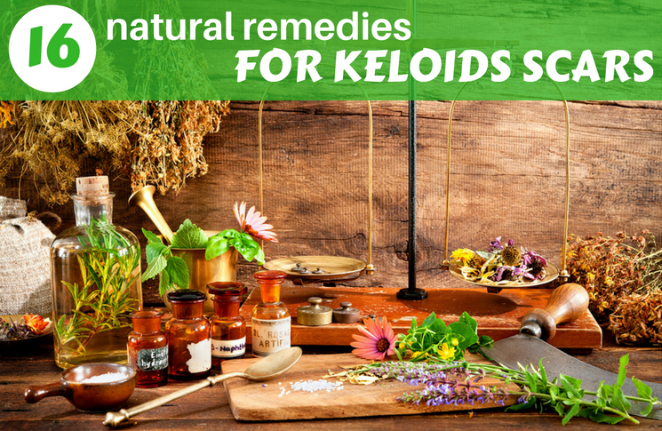 How to Get Rid of Keloids: 21 Most Used Remedies For Scars Removal