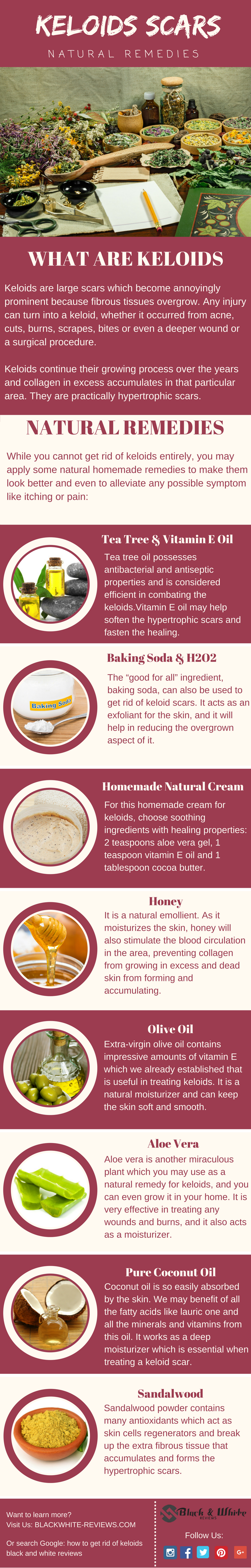 how to get rid of keloids scars infographic