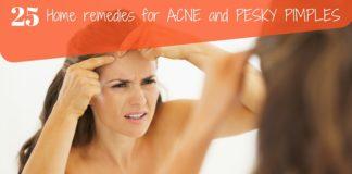 acne remedies