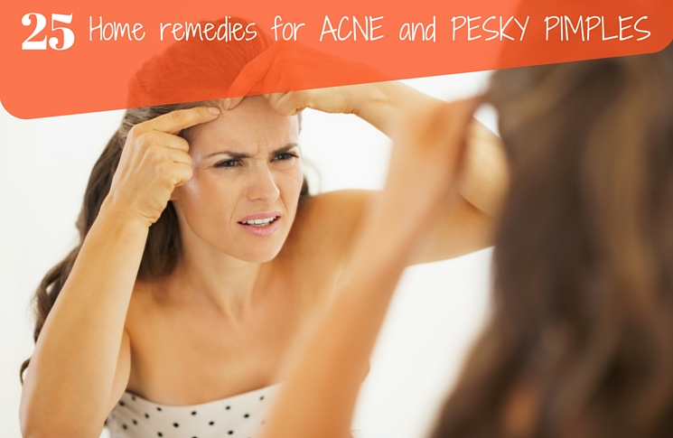 25 Ridiculously Easy Remedies To Get Rid Of Acne & Pesky Pimples