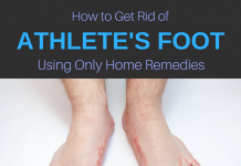 athlete's foot remedies