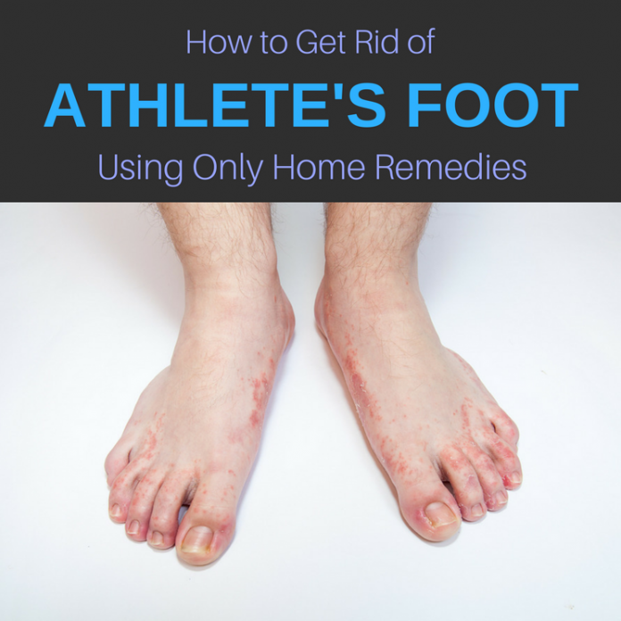 13 Home Remedies for Athlete's Foot: Cure & Get Rid of It ...