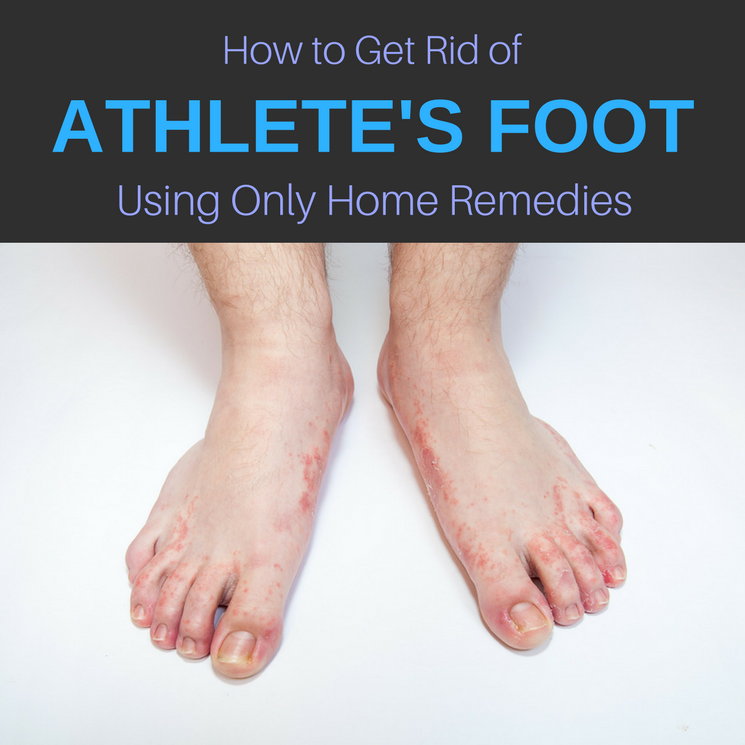 13 Home Remedies for Athlete's Foot: Cure & Get Rid of It  Naturally